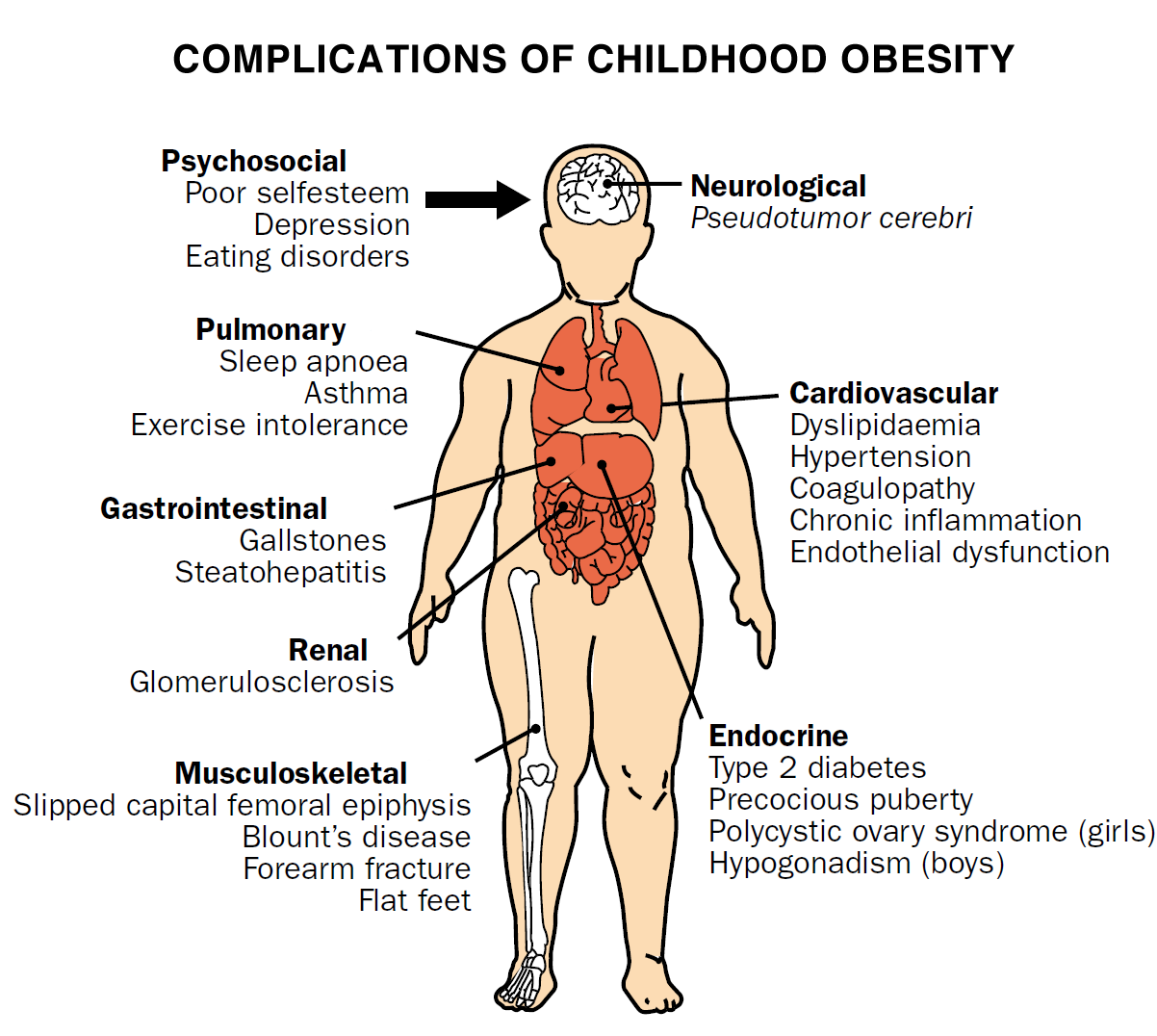 Functional Consequences Personal Effects Childhood Obesity